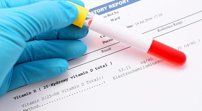 vitamina, risco, níveis, estudo, achados, pública, intervenções, saúde, prever, podem, múltipla, mostram, esclerose, nResultados, melhorar, Novos, somam, evidências