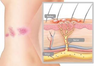 Motivo pelo qual pacientes com herpes-zóster sentem dor é explicado