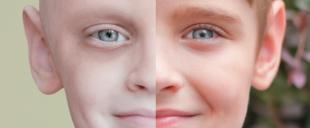 Fevereiro Laranja: mês de conscientização sobre doação de medula óssea